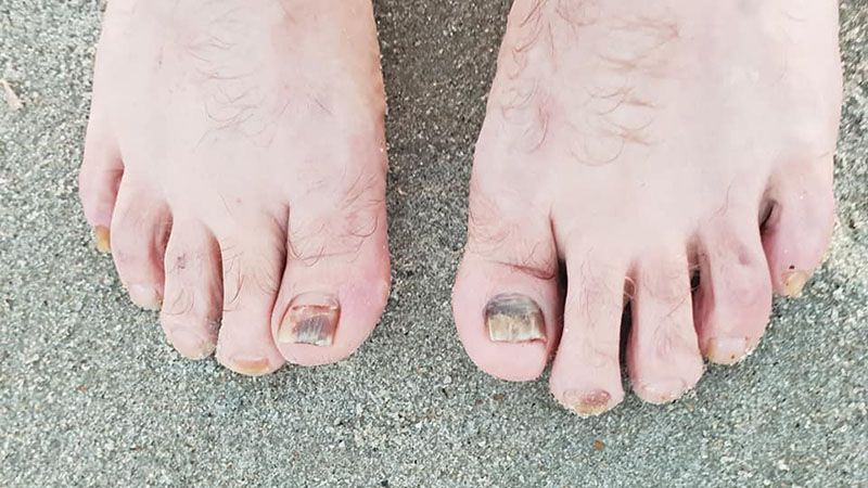 This is the toenail version of clinging to the wreckage